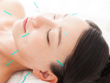 美容鍼でお肌の内側からスキンケア